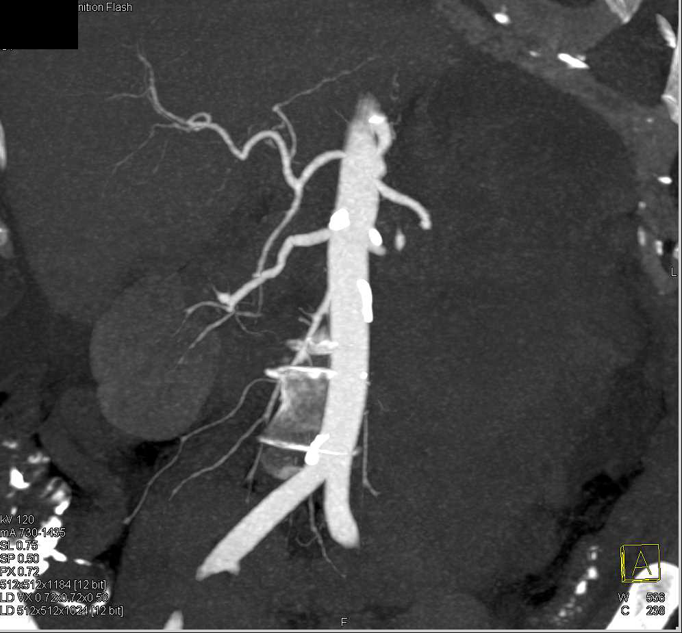 Splenic Rupture with Hemoperitoneum in Patient with Lung Cancer - CTisus CT Scan
