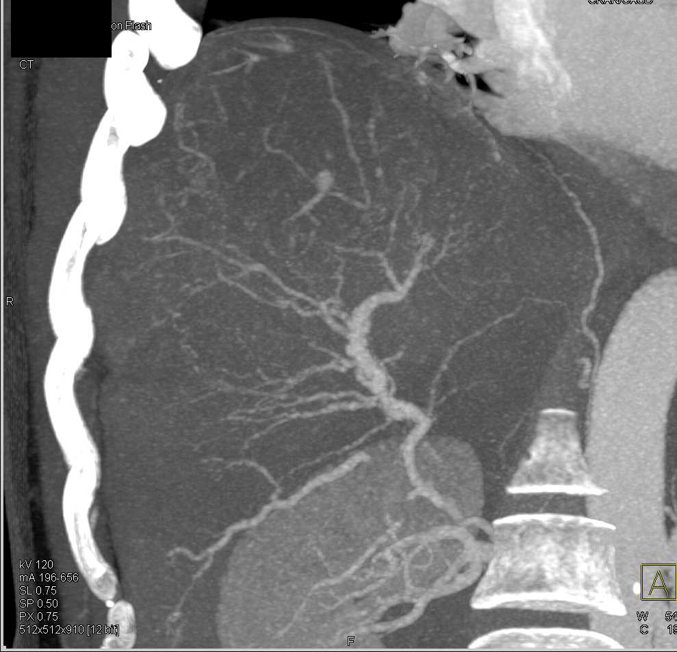 Cirrhosis with Vasculitis - CTisus CT Scan