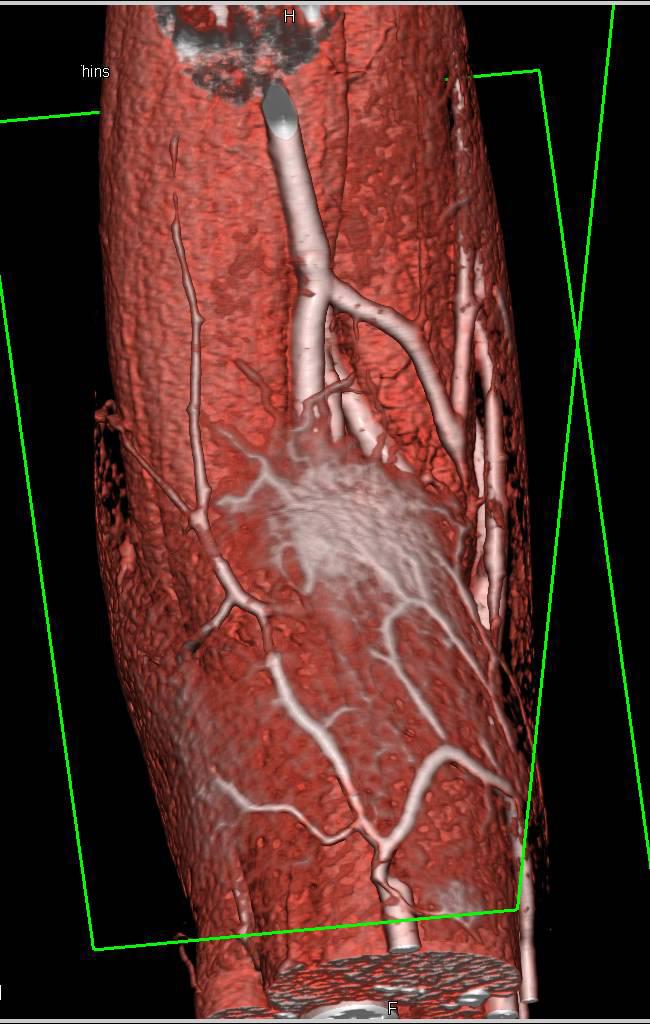 abscess in antecubital fossa