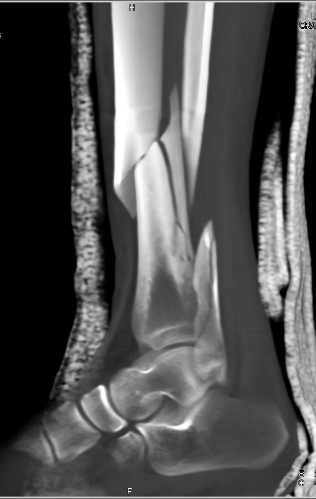 Spiral Fracture of the Distal Tibia and Fibula ...