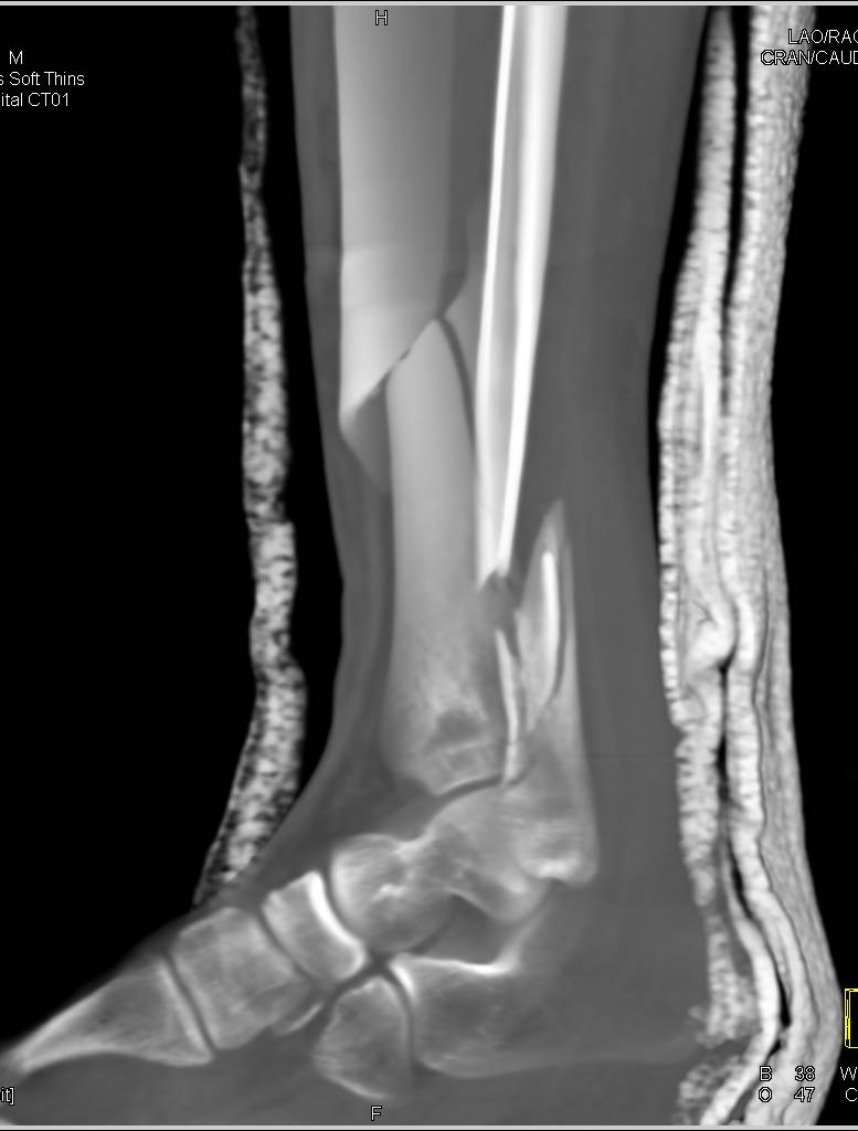 Spiral Fracture Of The Distal Tibia And Fibula Musculoskeletal
