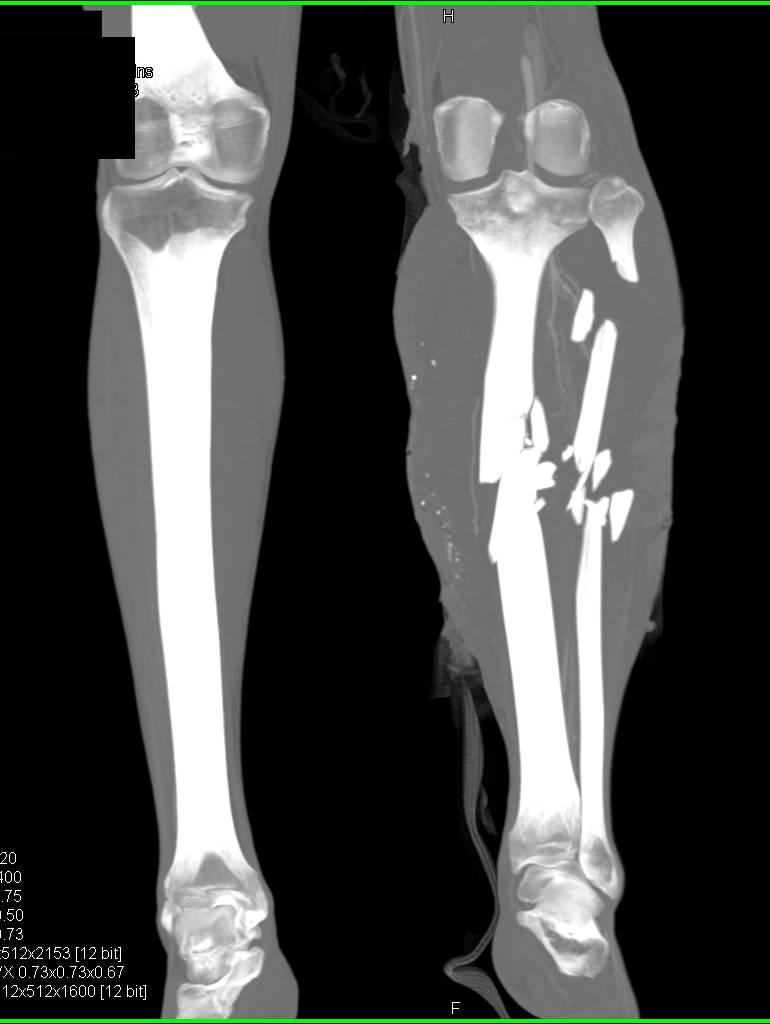 Bella's bullet wound – this is an FX makeup prop, not real ... |Gunshot Wound Leg