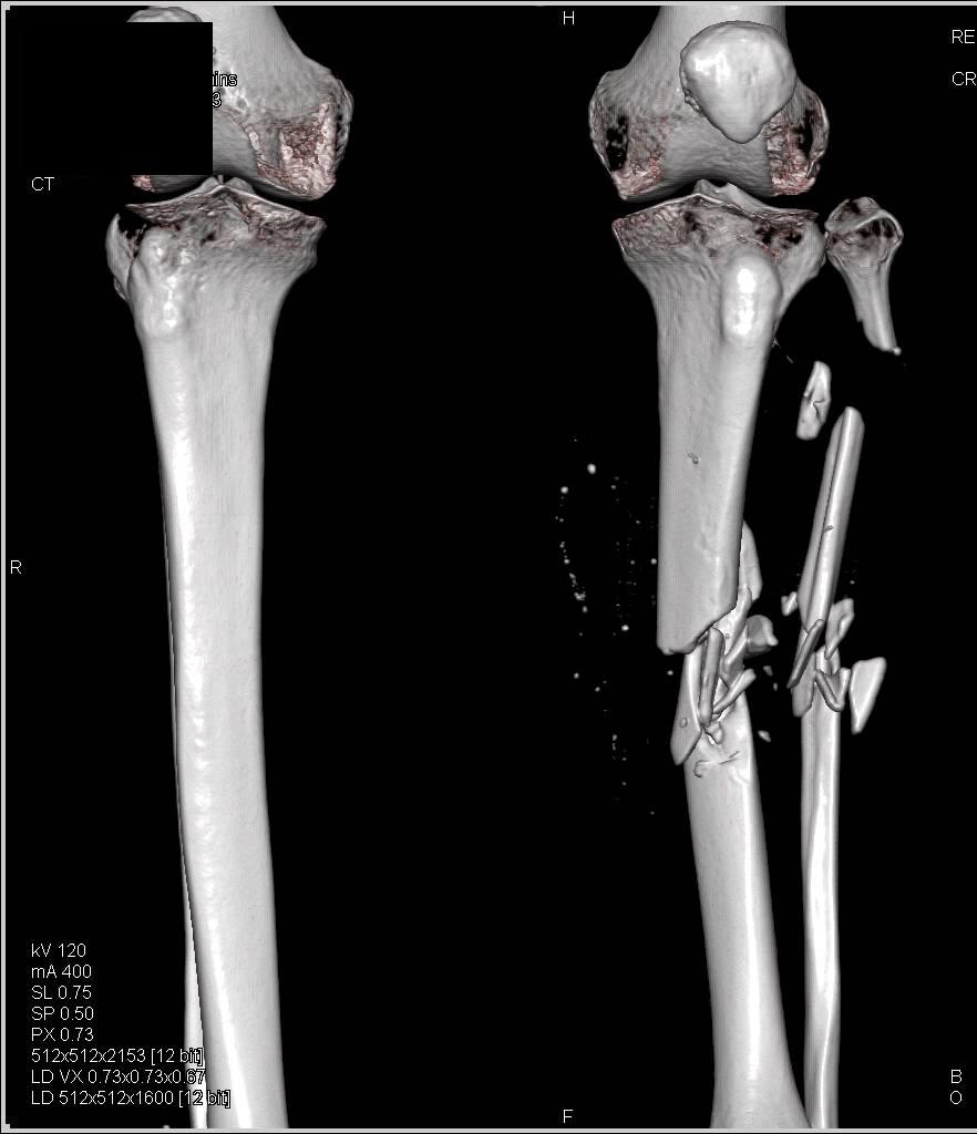 The Grisly Effects of a High-Velocity Gunshot Wound to the ... |Gunshot Wound Leg