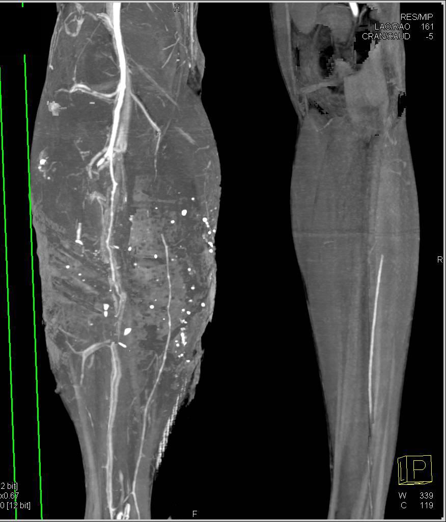 This Injection Can Even Seal A Gunshot Wound In 20 Seconds ... |Gunshot Wound Leg