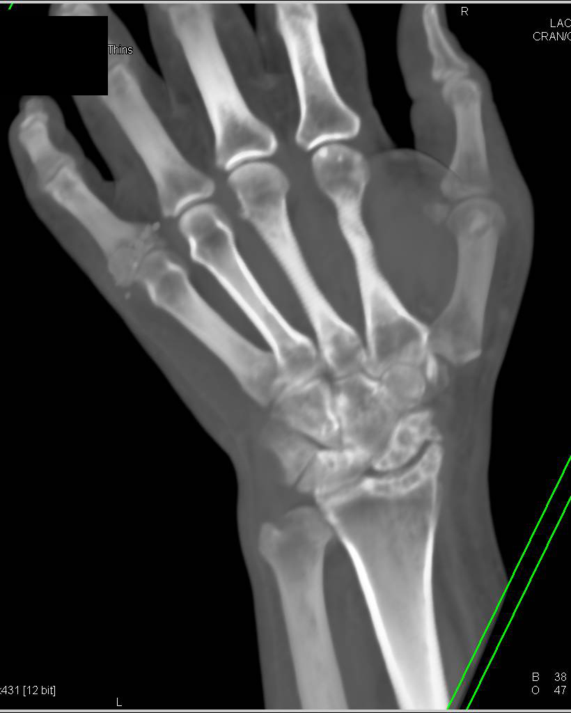 Cystic Changes Carpal Bones with Soft Tissue Swelling due to ...