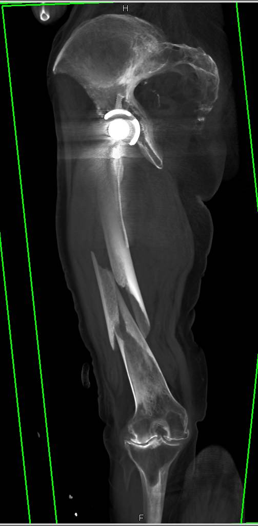 Spiral Femur Fracture Occurs Just Below Stem of THR