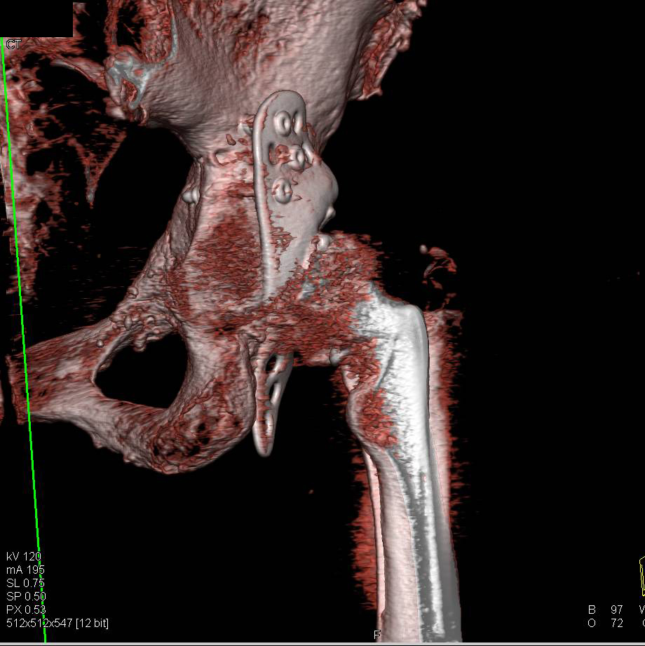 3D Mapping with Post Processing and Segmentation of Total Hip Replacement