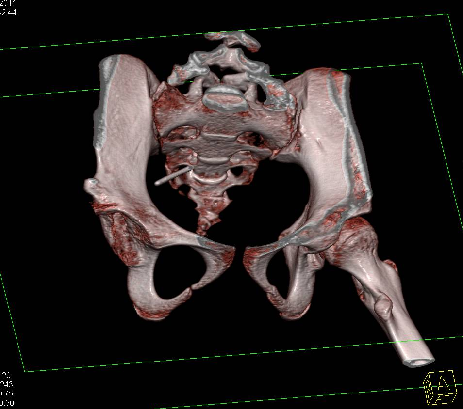 Congenital Hip Dysplasia with Repair - CTisus CT Scanning