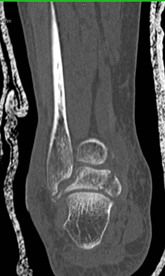 Multiple Fractures Including Patella, Talus and Calcaneus