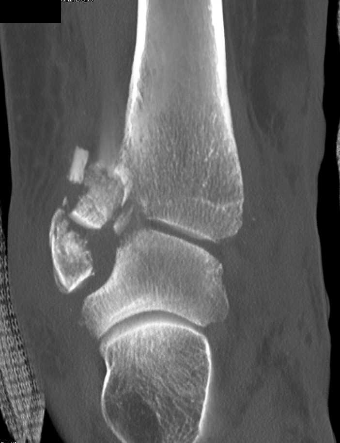 Comminuted Fracture Dislocation At Ankle Joint Musculoskeletal