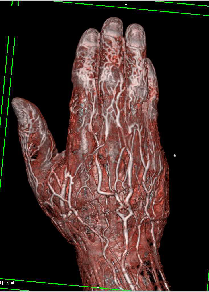 Cellulitis in the Hand with Vascular Mapping - Musculoskeletal Case ...