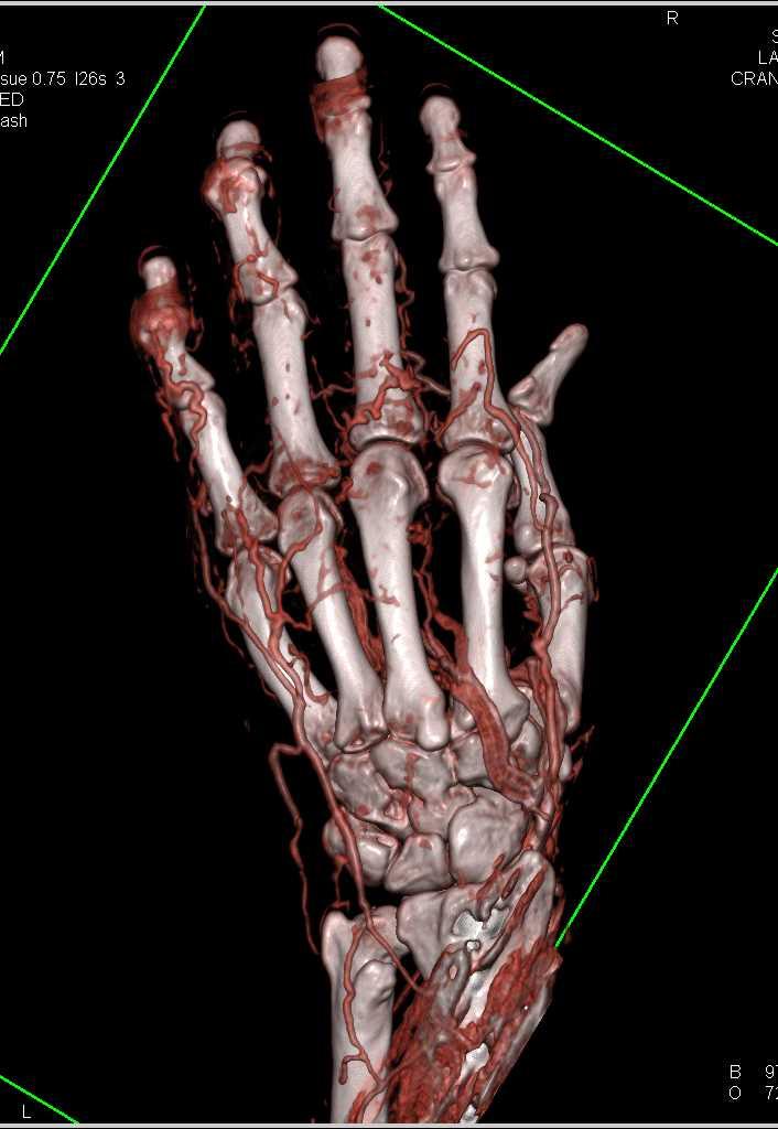 Distal Radius Fracture Repair and 3D Soft Tissue Imaging ...