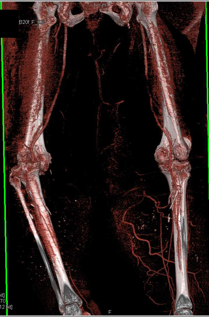 CTA of Lower Extremities in Patient With Cellulitis ...
