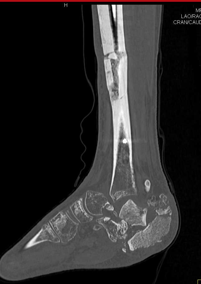 Complex Ankle Fragments in a Neuropathic Joint