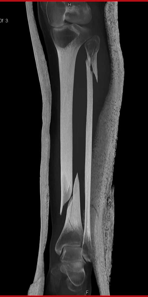 Spiral Fractures of the Tibia and Fibula - CTisus CT Scanning