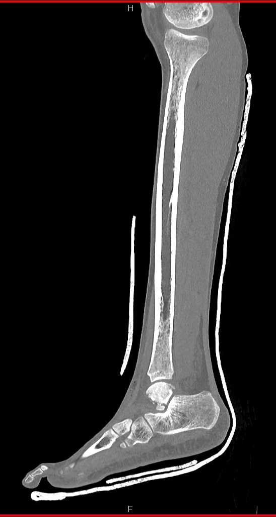 Talus and Calcaneal Fractures - CTisus CT Scanning