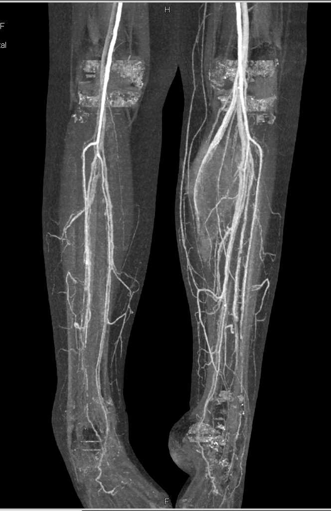 Large Bleed in the Left Calf - CTisus CT Scanning
