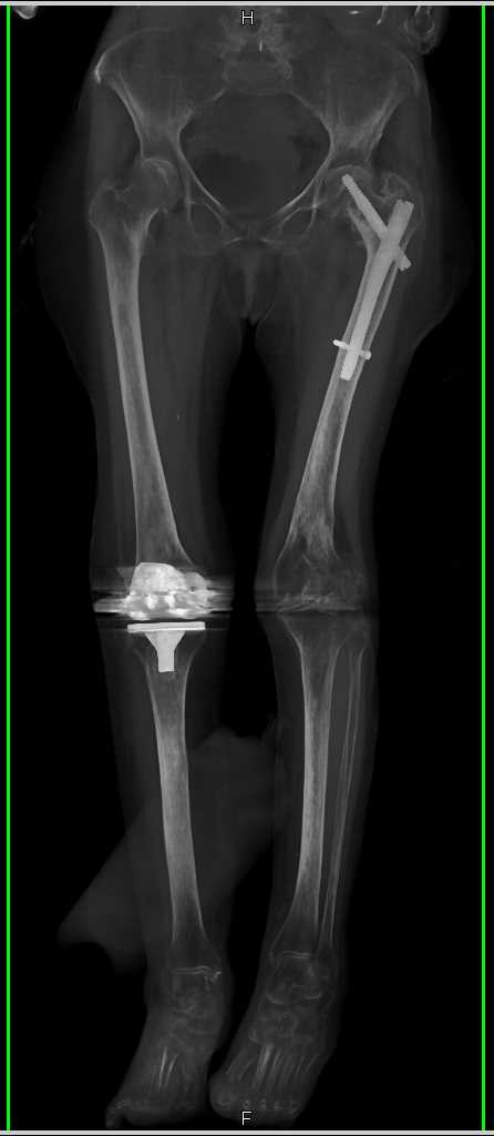 Left Distal Femur Fracture in Patient with Hardware - CTisus CT Scanning