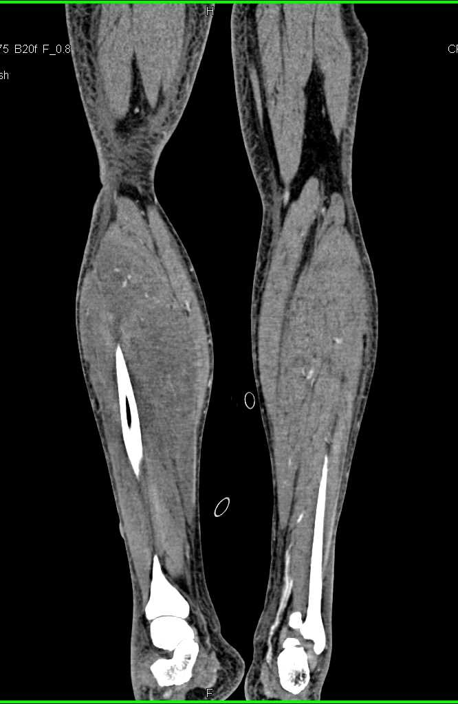 Myositis Right Calf with Compressed Vascular Flow - CTisus CT Scanning