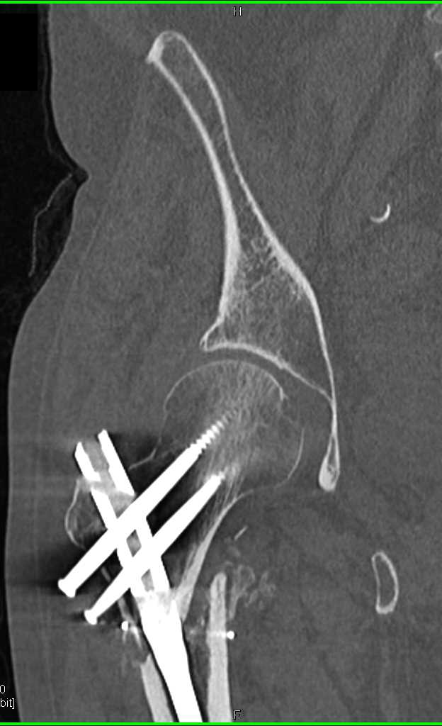 Refracture of Femur with Prior Pinning - CTisus CT Scanning