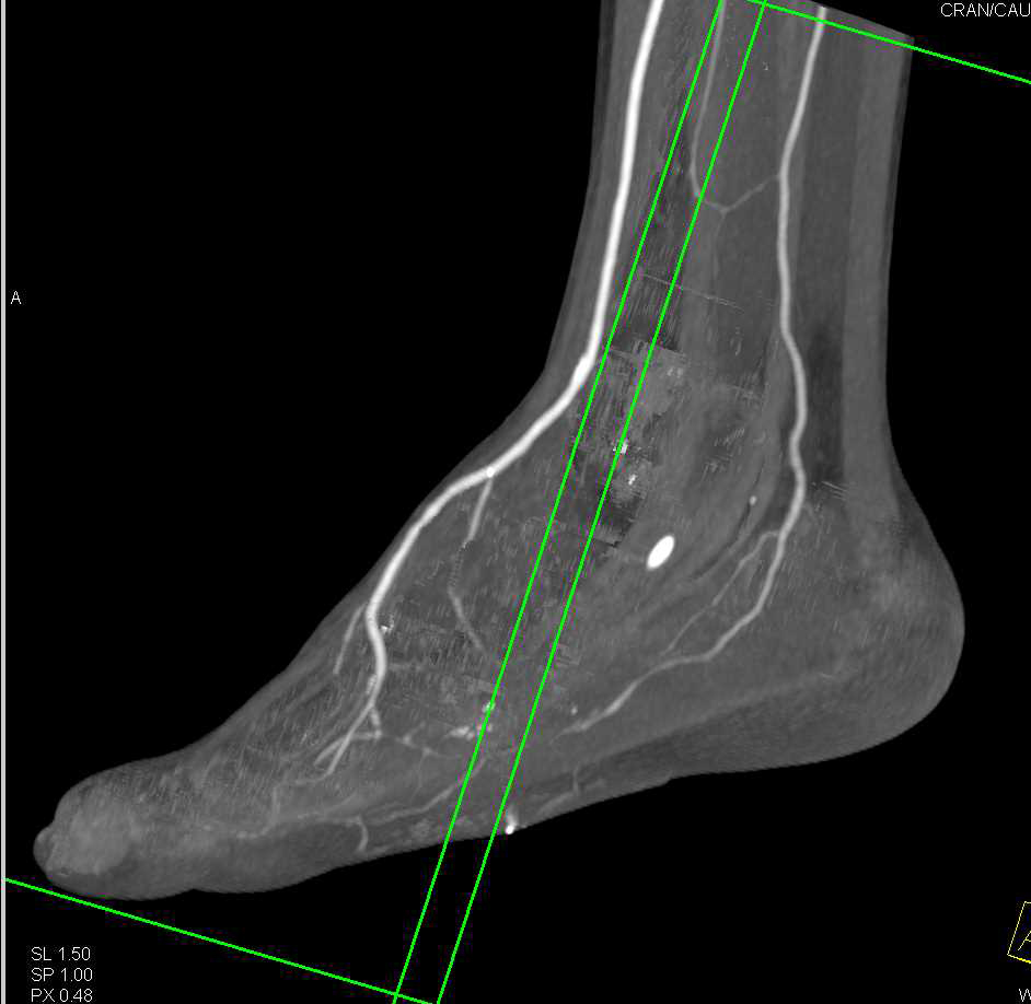 GSW Mid Foot with Fractures - CTisus CT Scanning