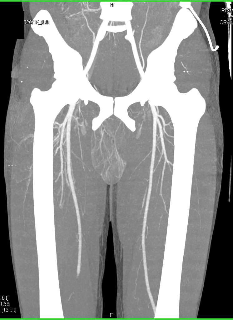 Trauma Right Thigh With No Vascular Injury - CTisus CT Scanning