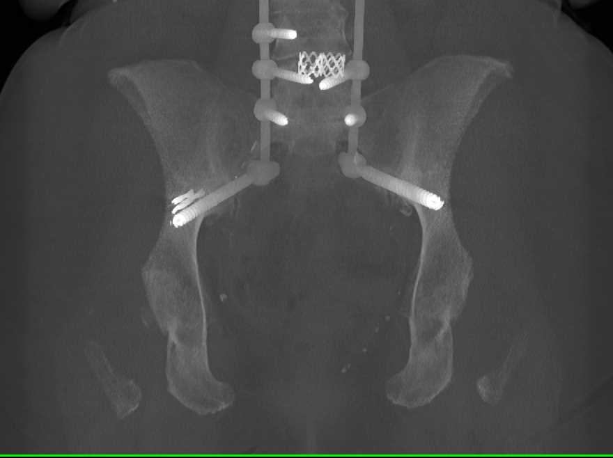 Hardware in Spine and Pelvis - CTisus CT Scanning