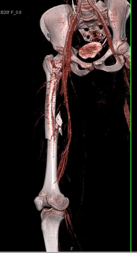 Spiral Femur Fracture - CTisus CT Scanning