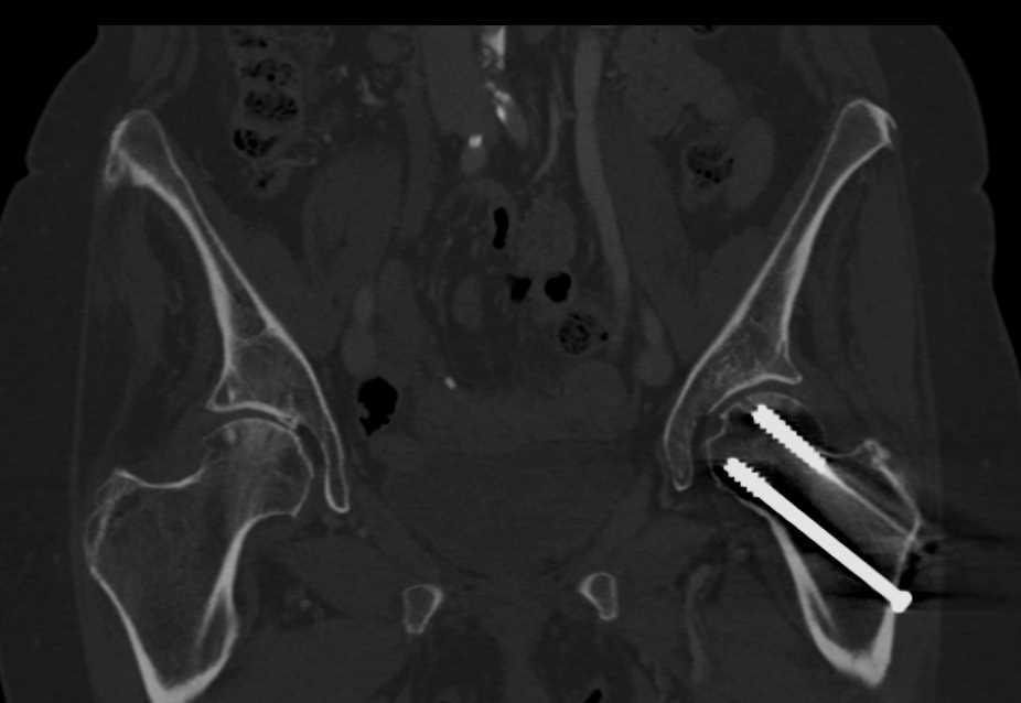Pins in Left Femur - CTisus CT Scanning