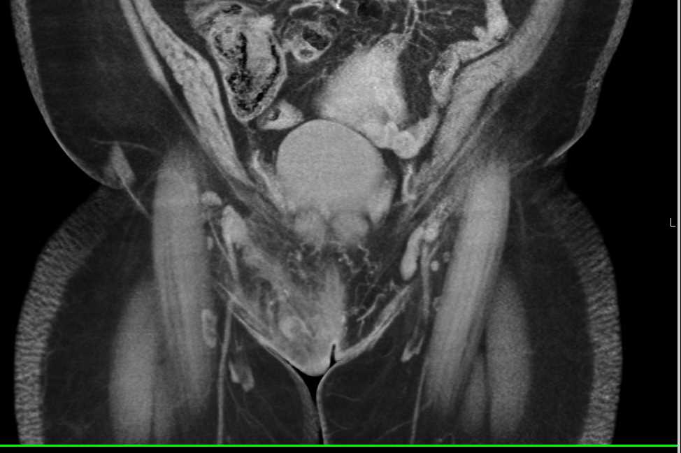 Cellulitis in the Soft Tissue of Pubis - CTisus CT Scanning