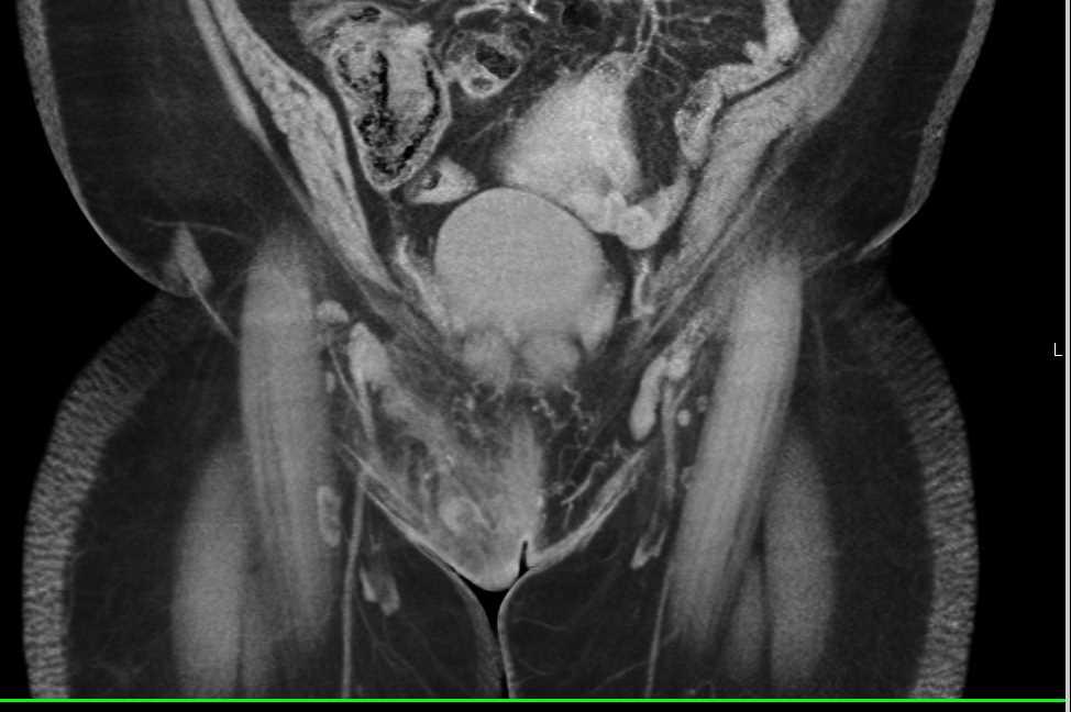 Cellulitis in the Soft Tissue of Pubis - CTisus CT Scanning