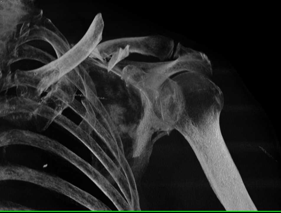 Fracture/Dislocation of the Left Clavicle - CTisus CT Scanning