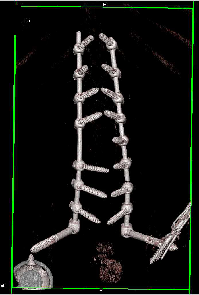 3D Rendering of Fractured Spinal Hardware - CTisus CT Scanning
