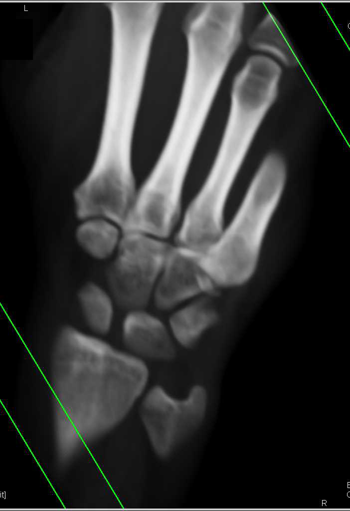 Fracture of the Base of the 5th Metatarsal - CTisus CT Scanning