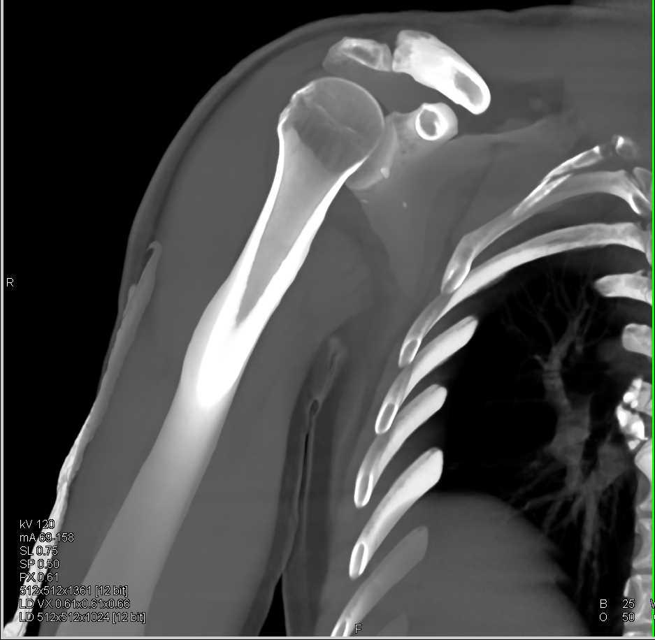 Scapular Fracture - CTisus CT Scanning