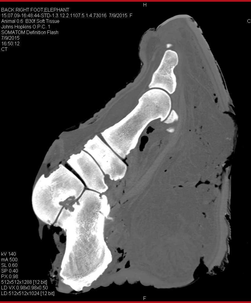 Elephant Foot in 3D - CTisus CT Scanning