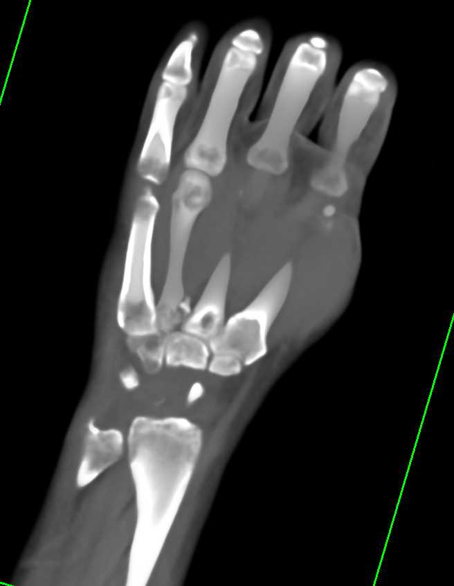 Multiple Carpal Fractures in 3D - CTisus CT Scanning