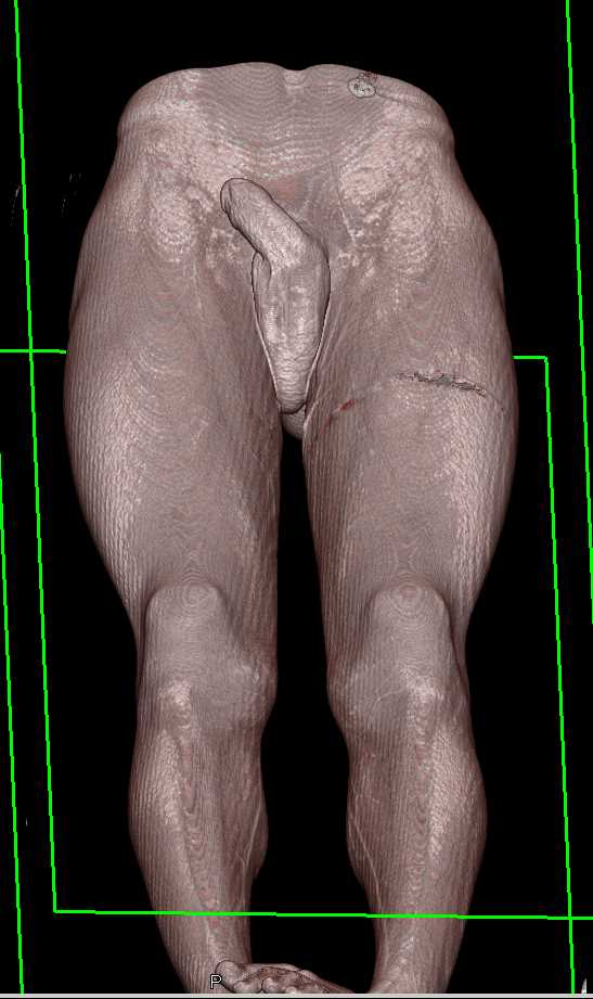GSW Thigh with Early Venous Opacification - CTisus CT Scanning