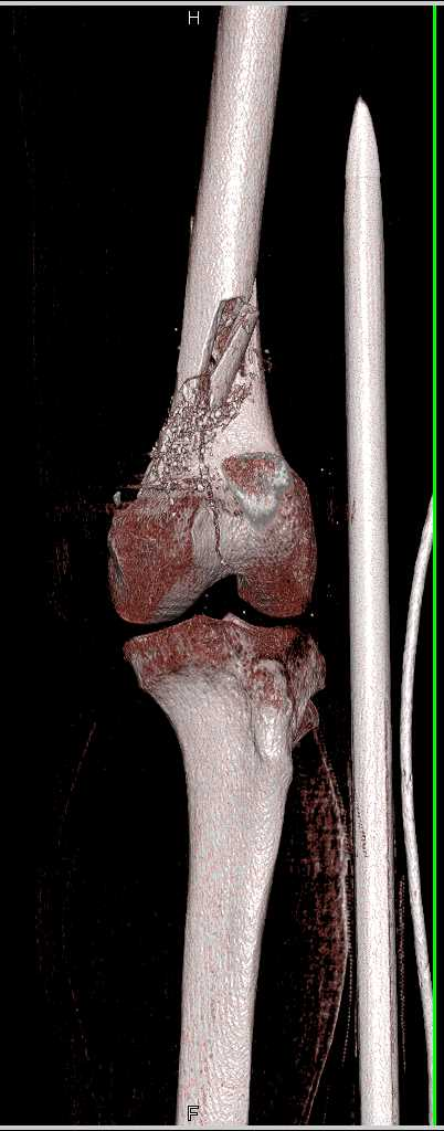 GSW with Femur Fracture - CTisus CT Scanning