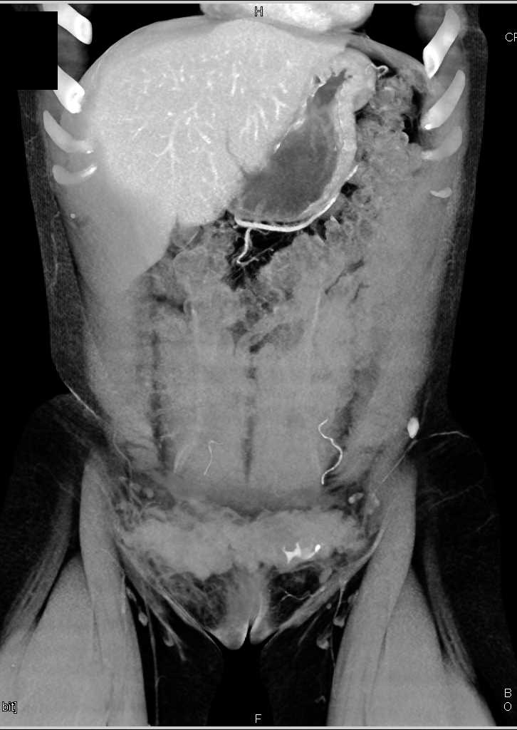 Hematoma In The Subcutaneous Tissues Abdominal Wall - Musculoskeletal Case Studies