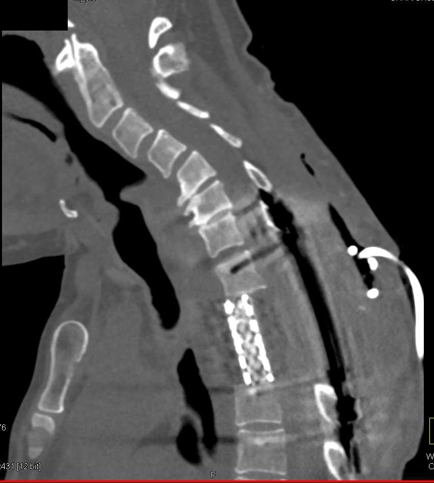 Surgical Repair with Implant T-Spine - CTisus CT Scanning