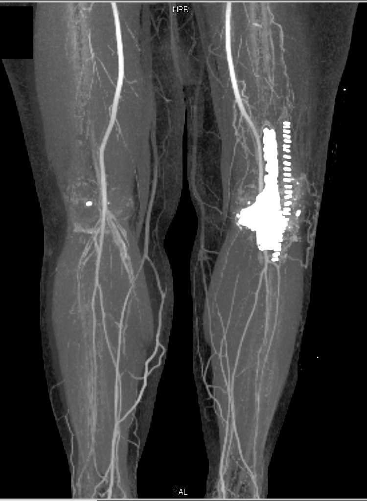 Vascular Map in Patient with Knee Replacement - CTisus CT Scanning