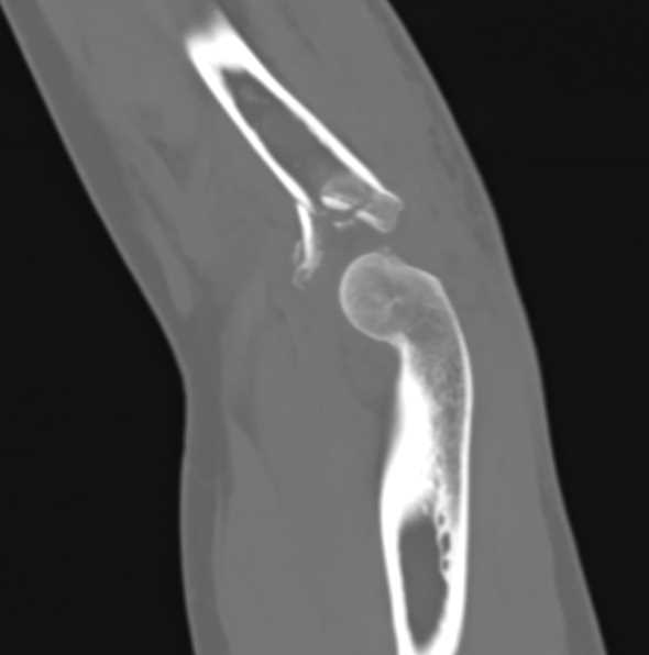 Positive Fat Pad with Radial Head Fracture - CTisus CT Scan