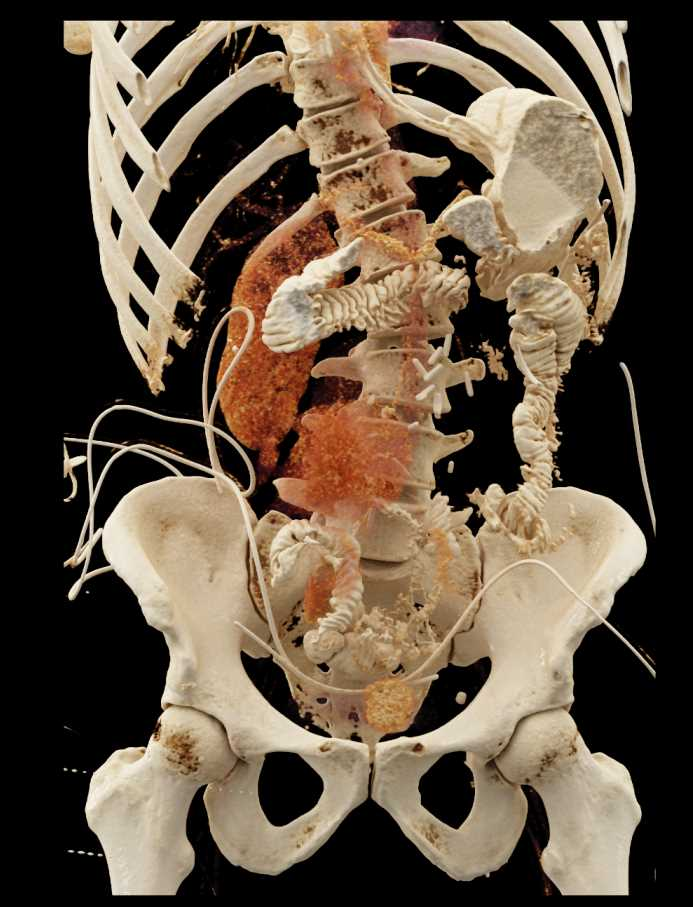 Cinematic Rendering of Osteomy and Changes in the Abdominal Wall - CTisus CT Scan