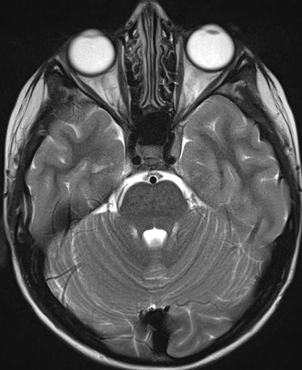Burkitt Lymphoma (Skull Base) - Neuro MR Case Studies - CTisus CT ...