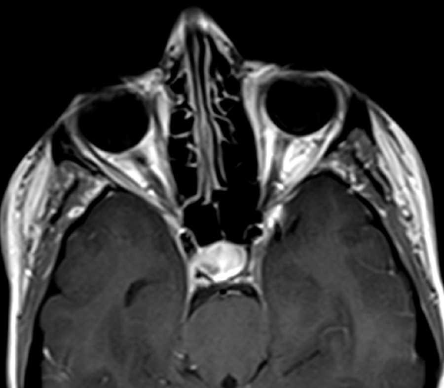 Pituitary macroadenoma