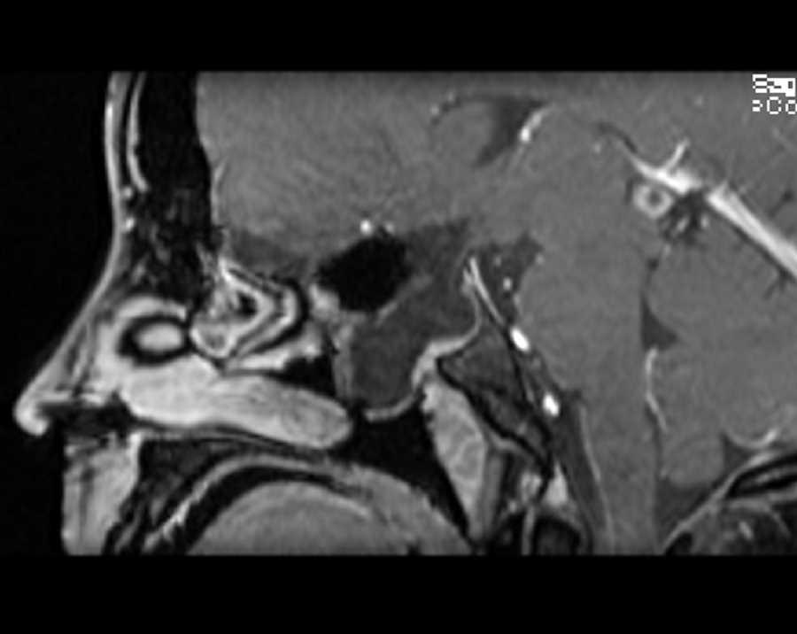 Meningoencephalocele - CTisus CT Scanning