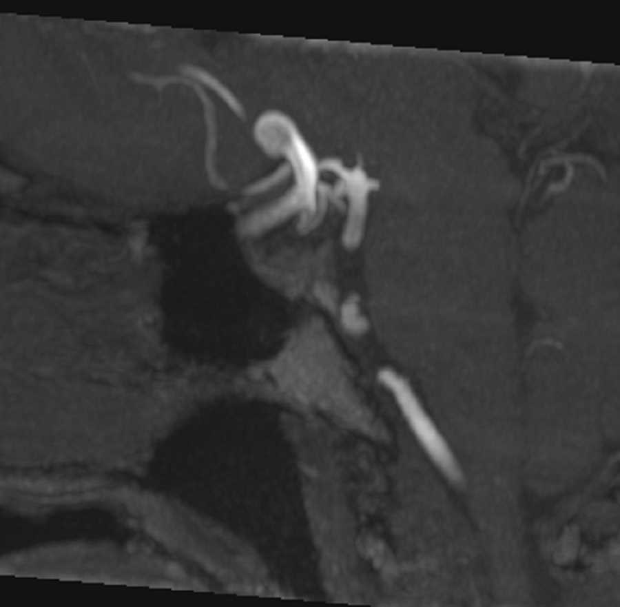 Intracranial Aneurysm - CTisus CT Scanning
