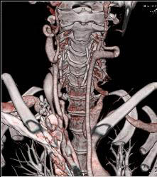 Ectatic Carotid Arteries in Loeys Dietz Syndrome. Patient Also Has Stenosis to Origin of Left Subclavian Artery