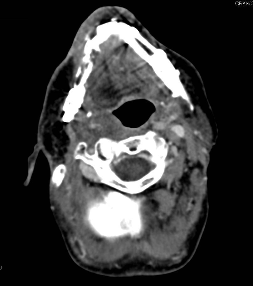 Recurrent Mandibular Tumor with CT?PET/MRI Correlation